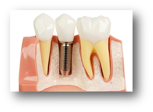 dental-implants-image 2