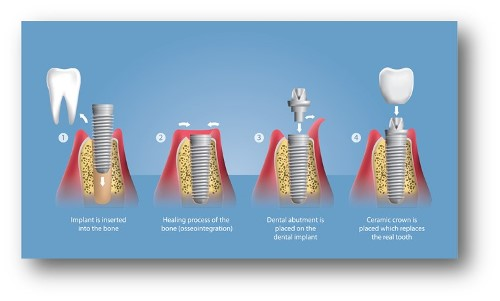 dental-implants-image1