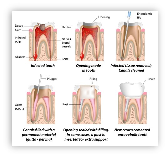 root-canal-treatmentss